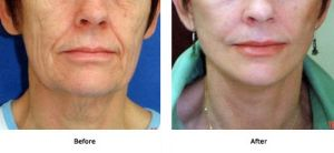 Lift Plus Jowls and Midface (1)