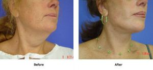 Lift Plus Neck and Jowls (6)