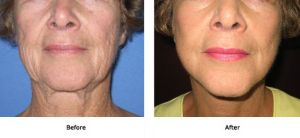 Lift Plus Neck, Jowls and Midface (1)