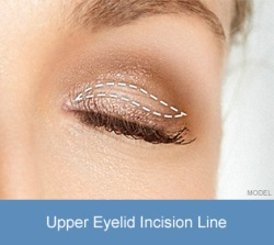 diagram-upper-eyelid-incision