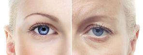 eyelid ageing