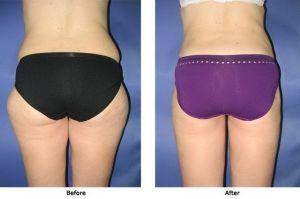 Liposuction 1 Flanks Outer Thighs and Inner Thighs