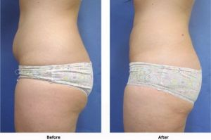 Liposuction 3 Abdomen