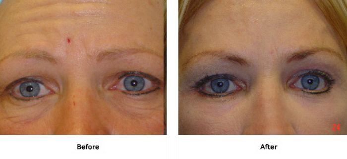 Laser Resurfacing Lower Eyelid